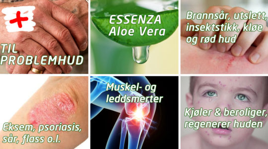 Essenza Aloe Vera til hudproblemer